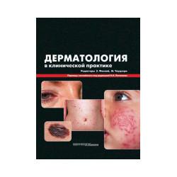 Дерматология в клинической практике.Перевод Н.Н.Потекаева